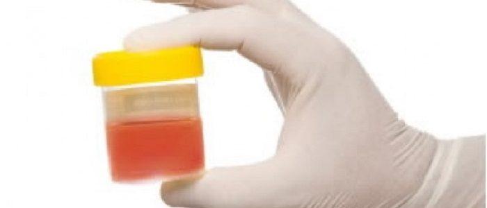 Простатит симптомы кровь в моче