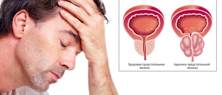 Первые признаки простатита у мужчин и его лечение