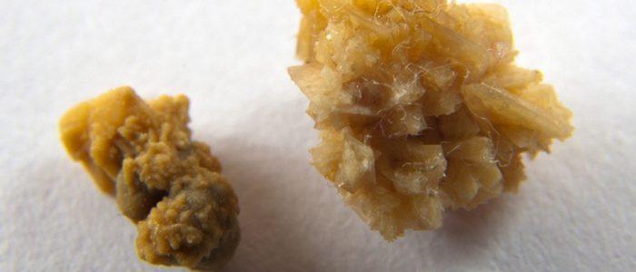 Как вывести камни оксалатные из почек