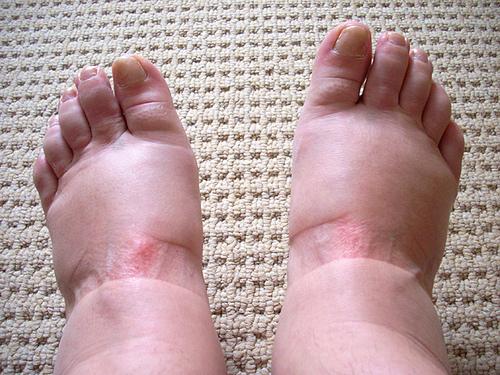 Опухла нога у беременной 15