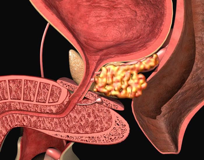 Виды лечения аденомы простаты