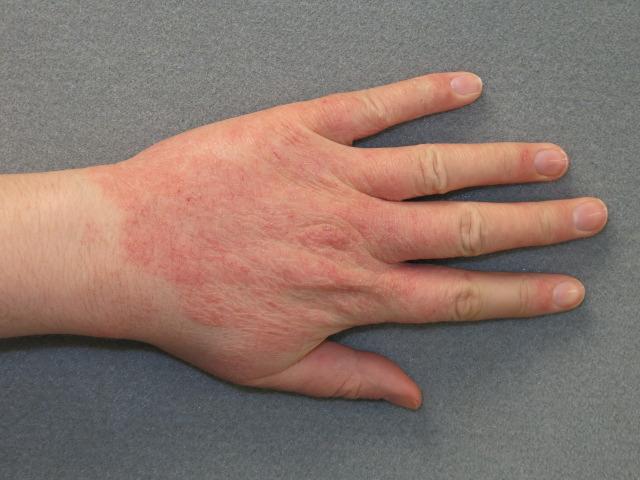 Примочки при атопическом дерматите