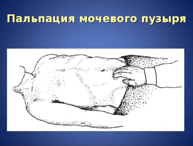 Перкуссия и пальпация мочевого пузыря: методика проведения