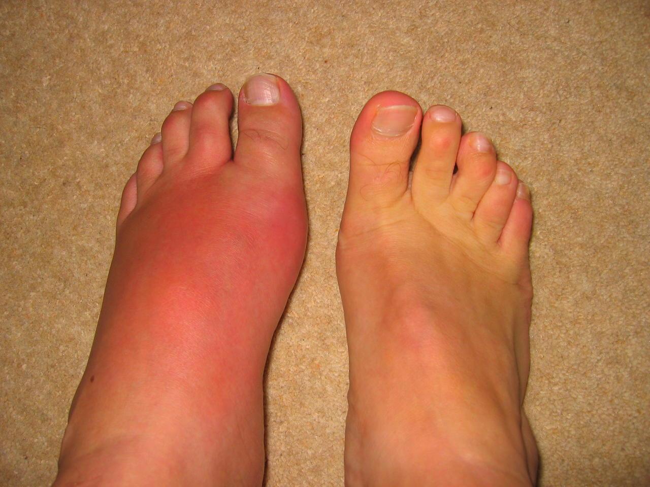 воспалился сустав большого пальца ноги что делать