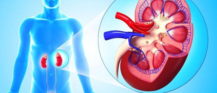 Сколько лечится пиелонефрит: острый тип, хроническая форма