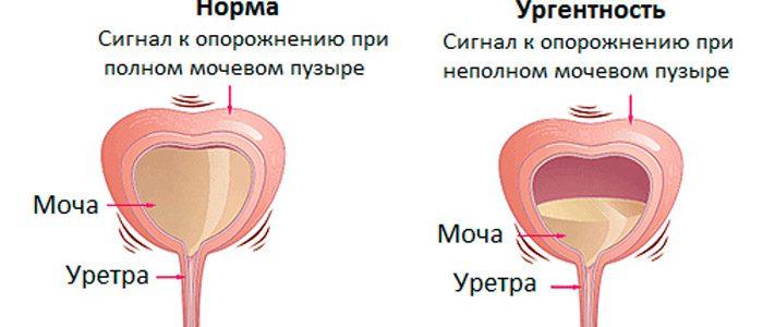 Ощущение неопорожненного мочевого пузыря у женщин